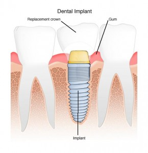 Villaggio Dental Implant