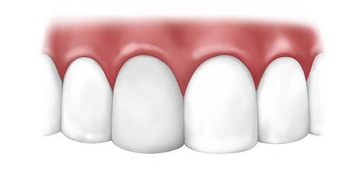 5 Reasons to Restore a Damaged Tooth with a Dental Crown