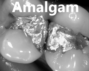 holistic dental amalgam replaced before
