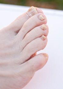toenail fungal infection